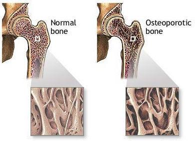 {focus_keyword} Kenapa Wanita Lebih Mudah Kena Osteoporosis Berbanding Lelaki? bone loss 2 osteoporosis