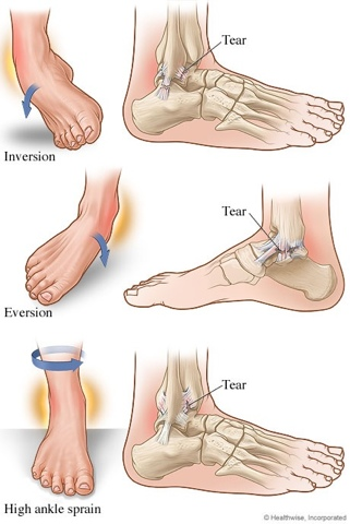 Ankle Sprains Foot Doctor The Woodlands Foot Doctor The Woodlands