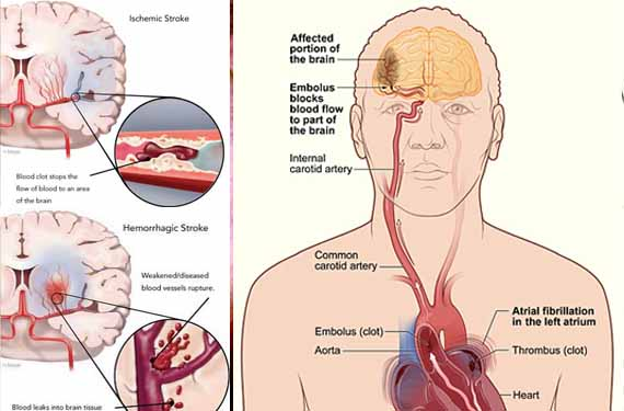 penyakit stroke Nutrisi Herbal Untuk Penderita Stroke