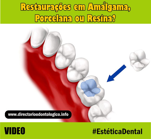 estética-dental
