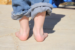 how to fix pronated ankles