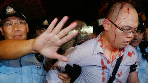 Cảnh sát dẫn một người biểu tình ra khỏi đám đông sau khi bị những người phản đối Occupy Central đánh bị thương hôm 3/10. Ảnh: Reuters