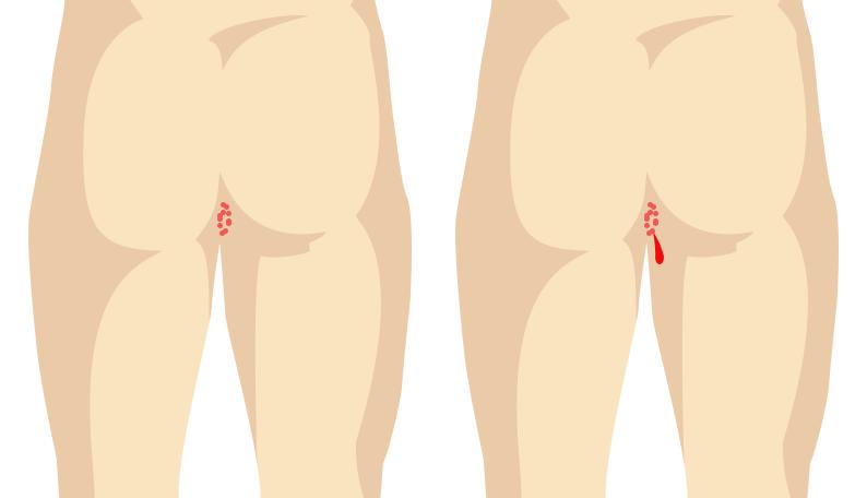 genital-warts-SEO-page-design-3.png