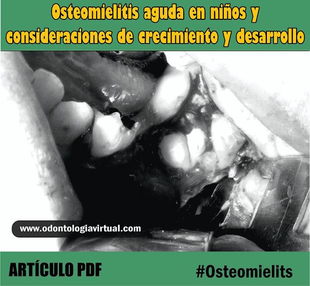 osteomielitis-niños
