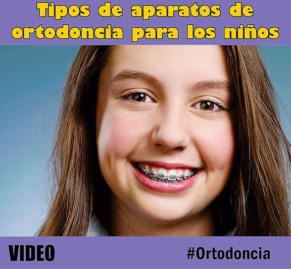 Ortodoncia tipos de aparatos de ortodoncia para los ni os for W de porter ortodoncia