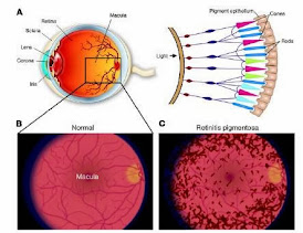 Mencegah & Mengobati Sakit Mata Retinitis Pigmentosa