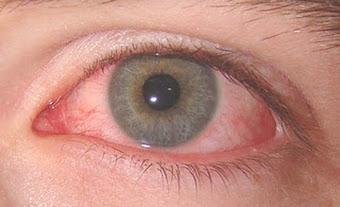 Mirtoplus Untuk Iridosiklitis Infeksi pada Mata