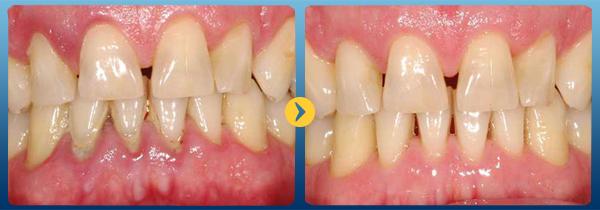 Lấy cao răng mất bao nhiêu thời gian và có ảnh hưởng tới răng không 1