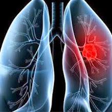 SUPER LUTEIN – Obat Kanker Paru Paru Aman Dan Ampuh