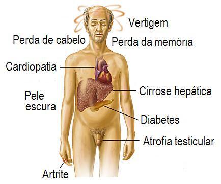 hemocromatose-sintomas