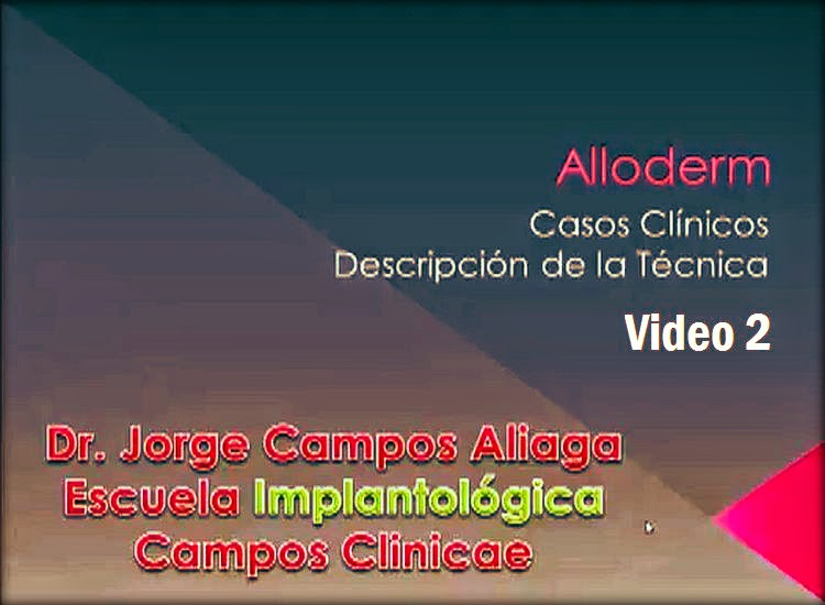 implantologia-alloderm