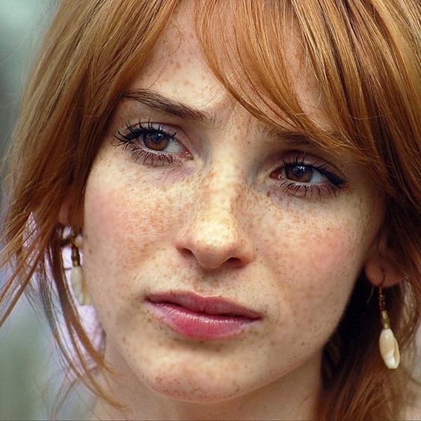Пигментные пятна на лице причины появления у женщин фото