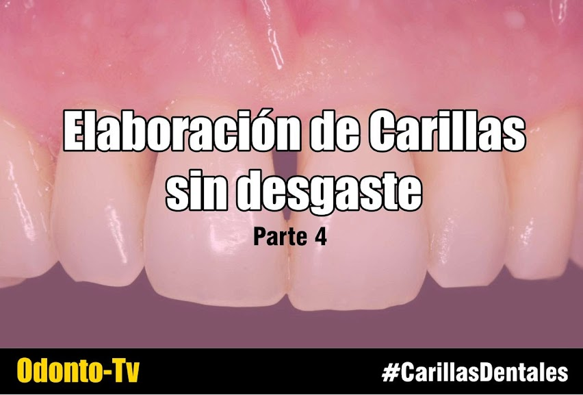 carillas-dentales