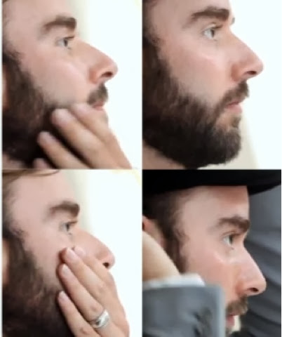 skæg på halsen