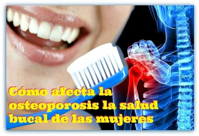 osteoporosis-salud-bucal