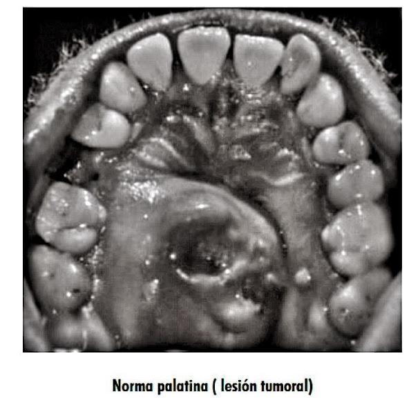 carcinoma-adenoide-quistico