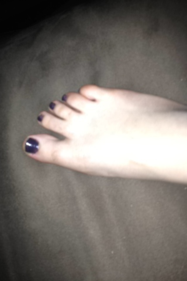 gross feet, gross foot, meg, twins, black toe nails, polish