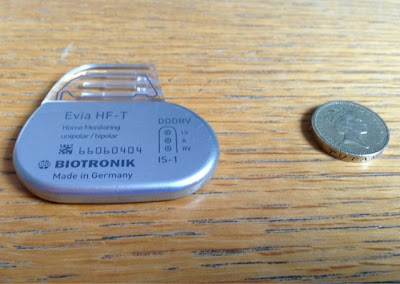 A Biventricular Pacemaker