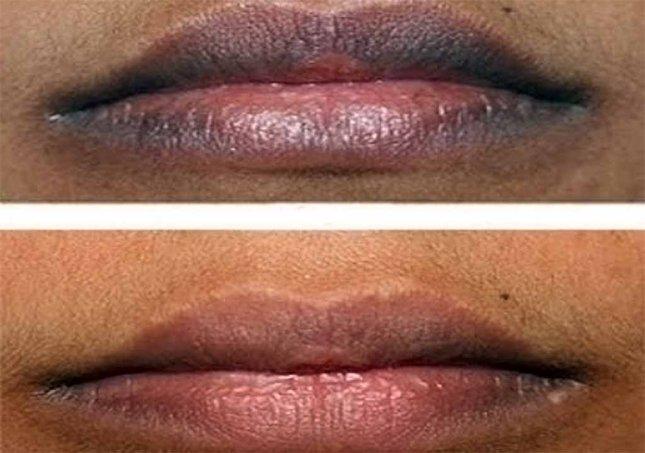 {focus_keyword} 5 Petua Mendapatkan Bibir Merah Semulajadi Di Pagi Raya Smerete dark lips
