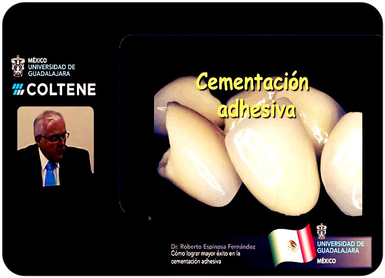 cementacion-adhesiva