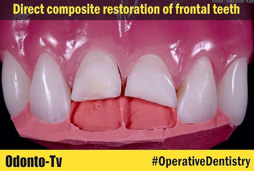 Direct-composite-restoration