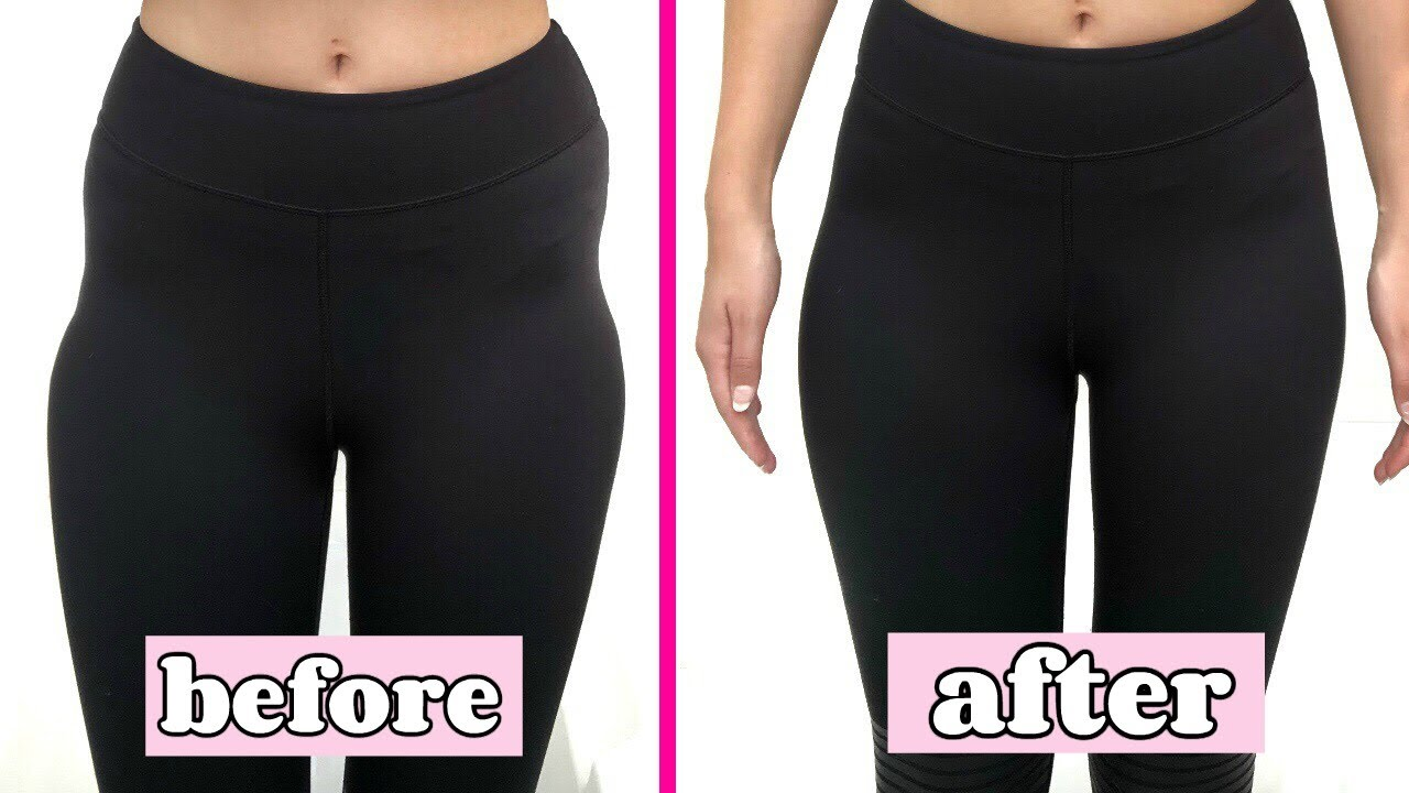 hip dips before and after