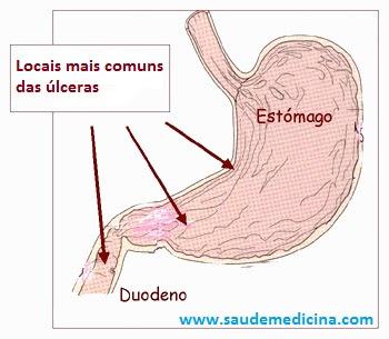 úlceras gastricas