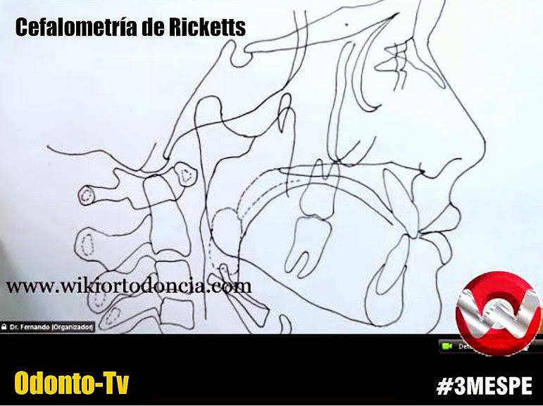 Cefalometria-Ricketts