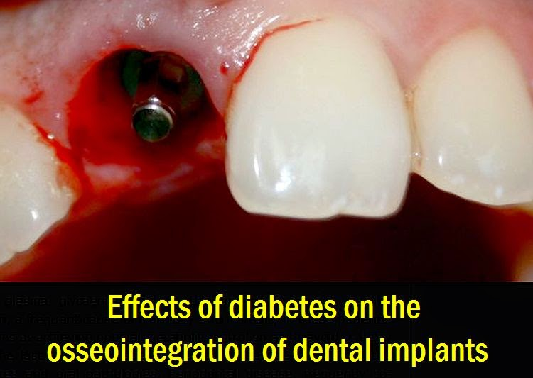 diabetes-osseointegration