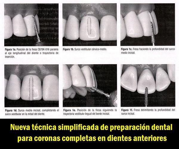 tallado-dientes-anteriores