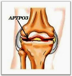 Почему болят суставы рук и ног