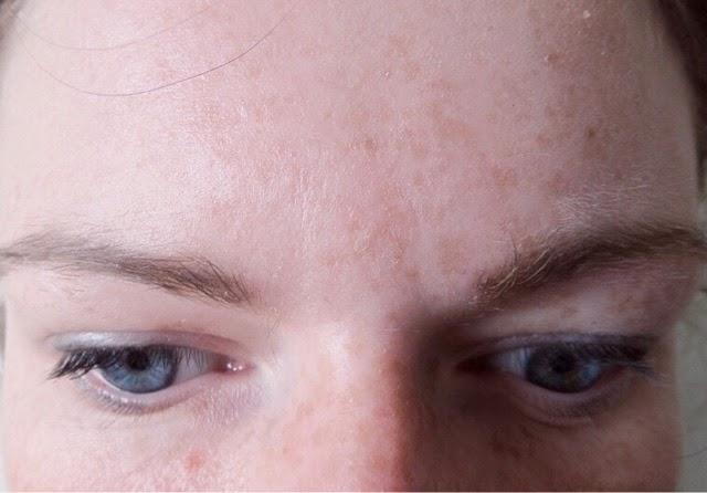 Derma Glo Shots collagen skincare shots