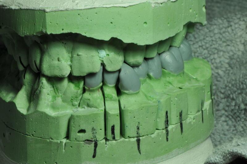 ���� Lower teeth ����� ���� DSC_1957.JPG