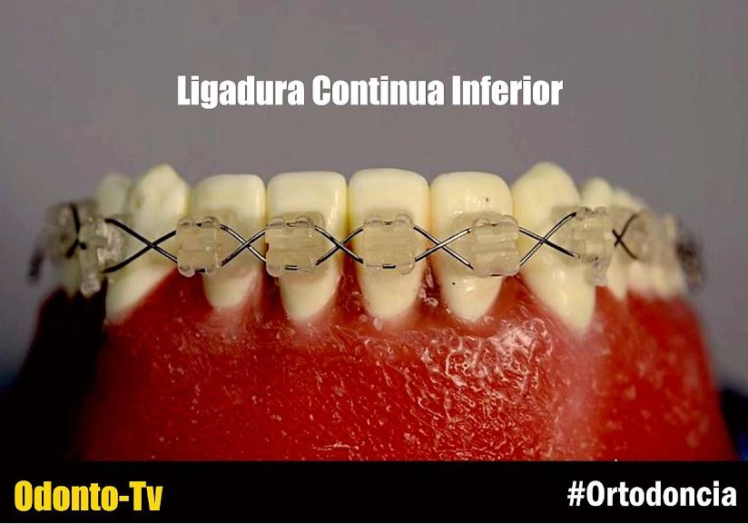ligadura-continua-ortodoncia