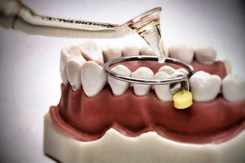 metariais-dentários