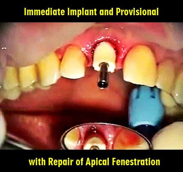 Immediate-Implant