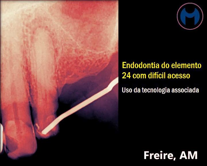 acesso-endodontia