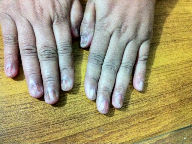 Homeopathic Dr. Muhammad Iqbal: Lichen planus nails