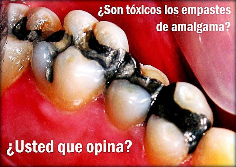 amalgama-dental