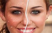 Famosos con acne
