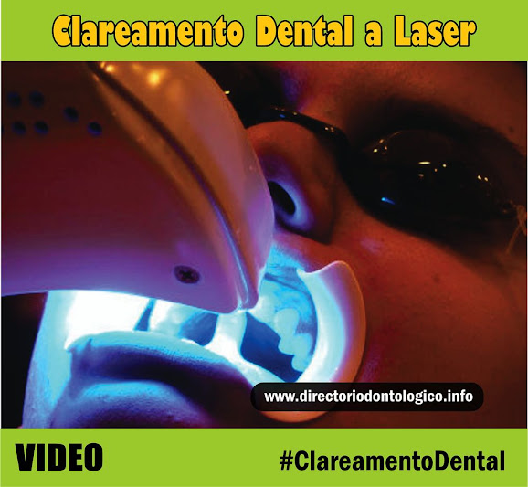 clareamento-dental