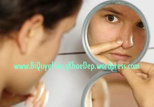 Nhiều bạn ám ảnh vì không trị mụn đầu đen hết?
