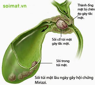 Hội chứng Mirizzi trong bệnh sỏi mật