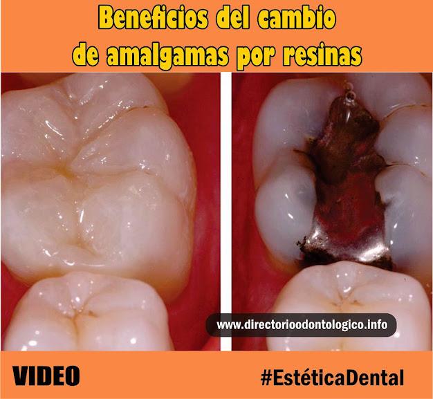 amalgama-resina-dental
