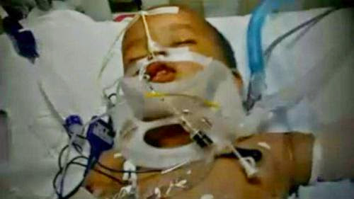 Miracle Baby Survives Fall From 11Th Floor