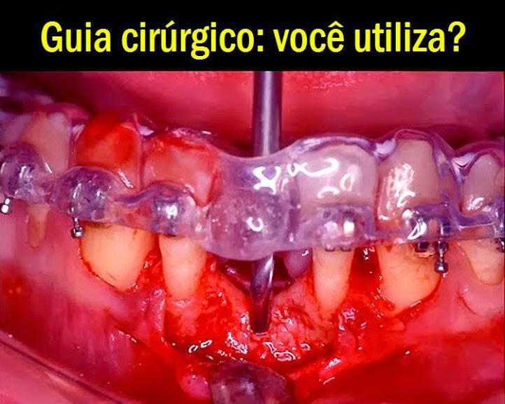 guia-cirúrgico-implantodontia