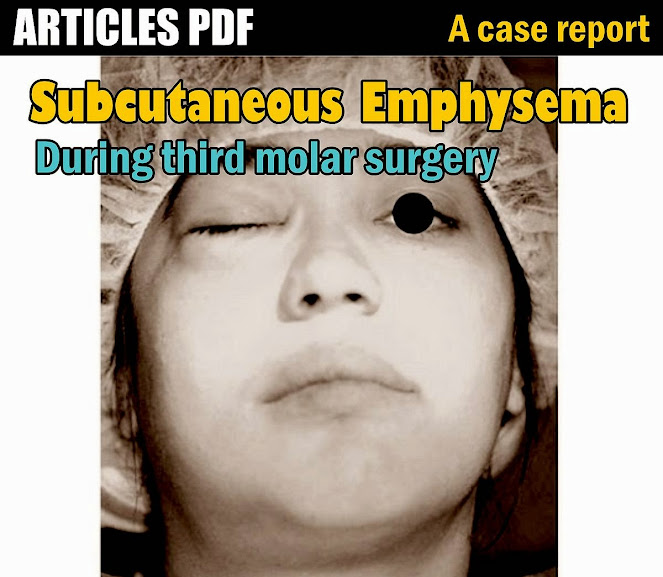Subcutaneous-Emphysema