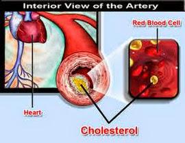 Solusi Sehat Pengobatan Kolesterol Tinggi dan Floaters