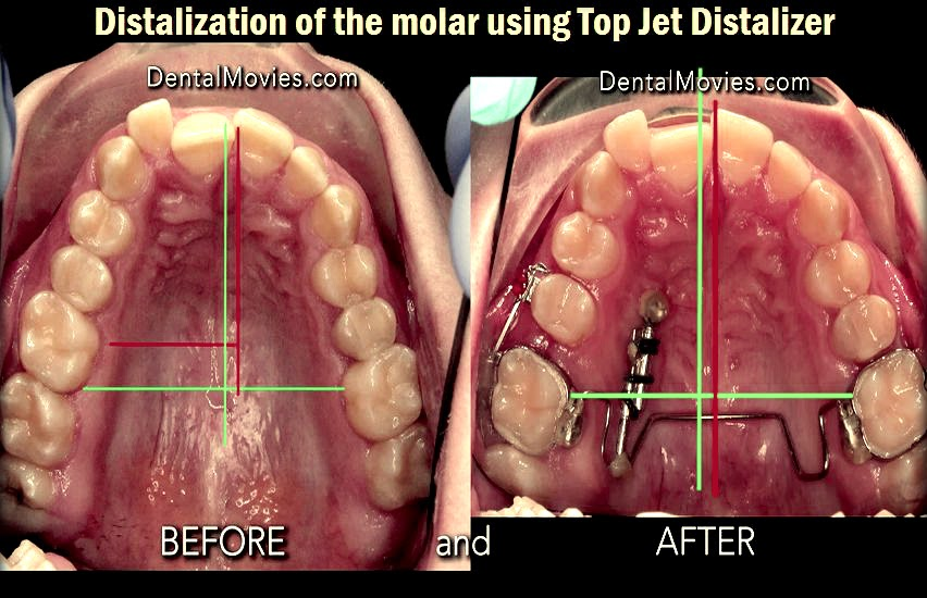 distalization-molar
