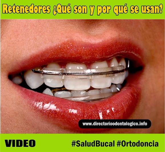 Retenedor Ortodoncia